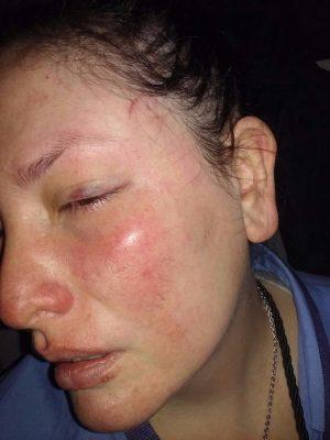 Así quedó el rostro de Gisela Gitto, la guarda agredida el lunes en la línea D.